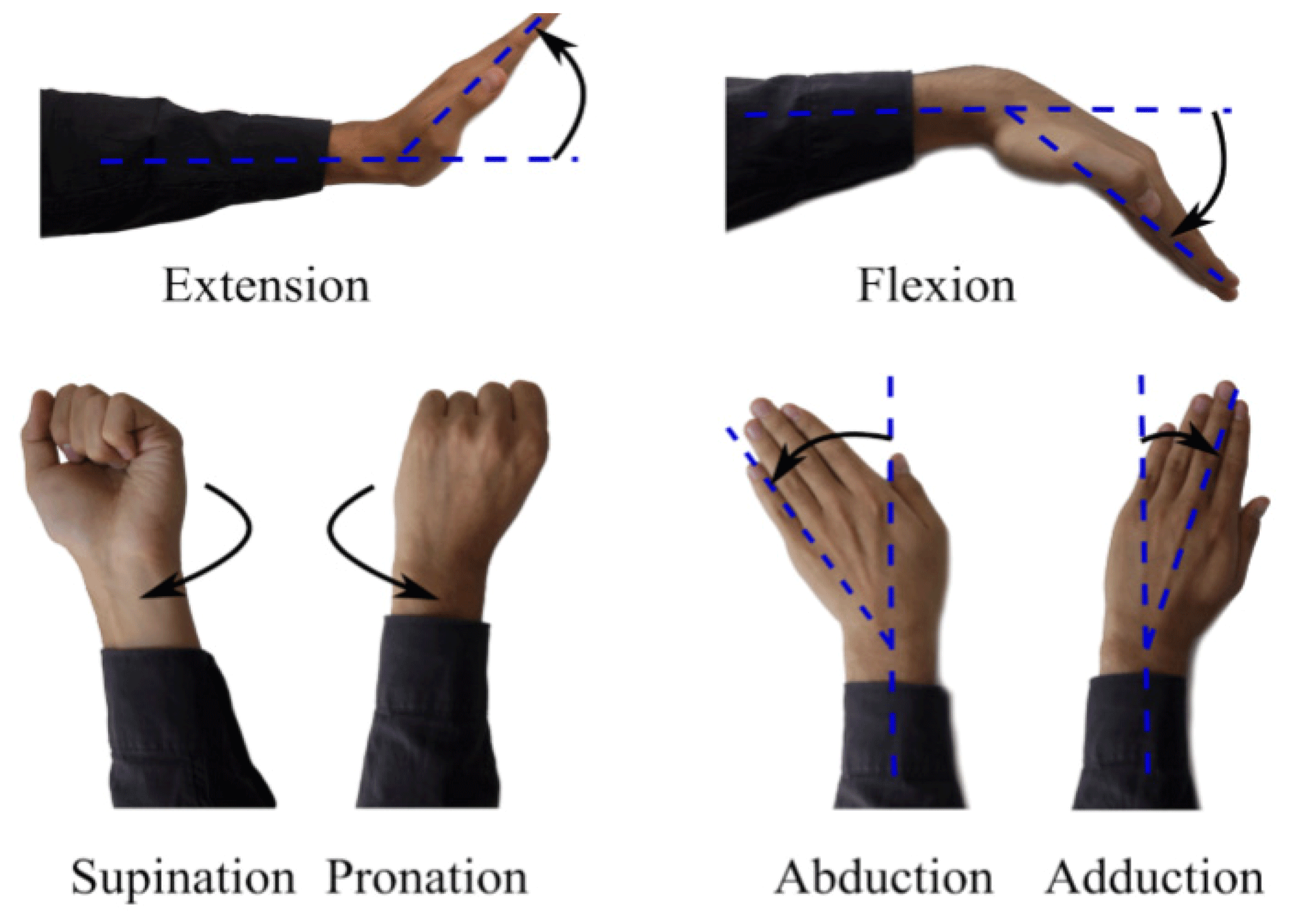 Image result for An Exoskeleton Design Robotic Assisted Rehabilitation: Wrist & Forearm